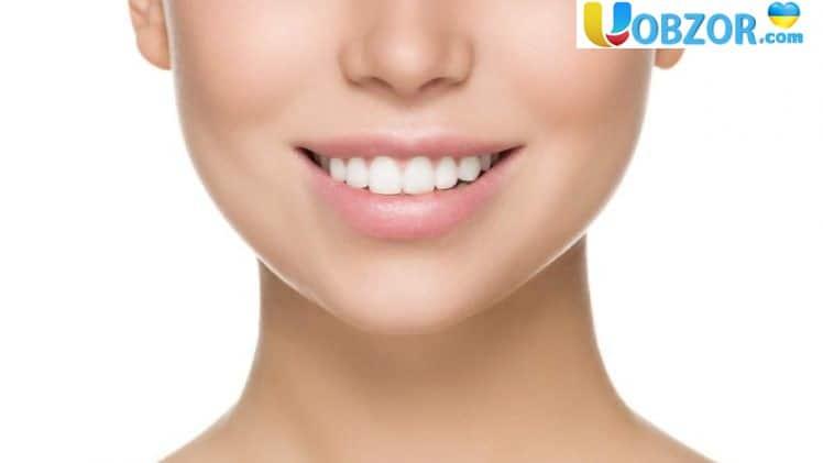 Відбілювання зубів: плюси і мінуси