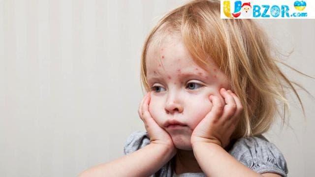 В Україні за рік на кір захворіло більше 52 тис. осіб