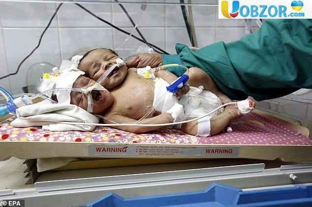 У Ємені народилися рідкісні сіамські близнюки з одним тілом на двох