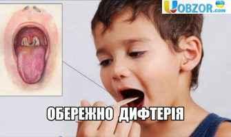 Дефіцит вакцини проти дифтерії: кількість хворих зростає